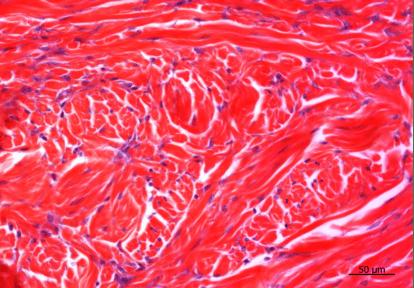 Un cas de dermatofibrose chez un Berger Allemand
