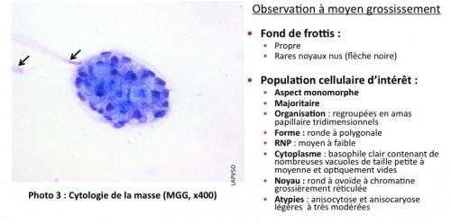 Cas de cytologie clinique : Un cas d'adénome sébacé