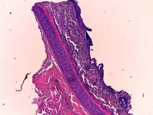 Un cas de dermatose acantholytique féline due à une dermatophytose
