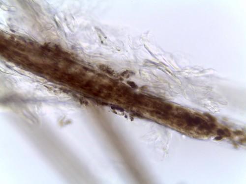 A propos de trois cas de dysplasie folliculaire  au sein d'une portée de chiots croisés