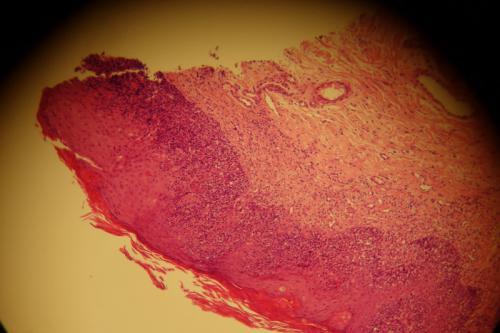 Un cas de lymphome cutané épithéliotrope