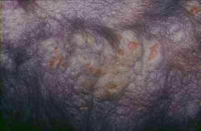 Un cas de mastocytome multicentrique traité par la lomustine