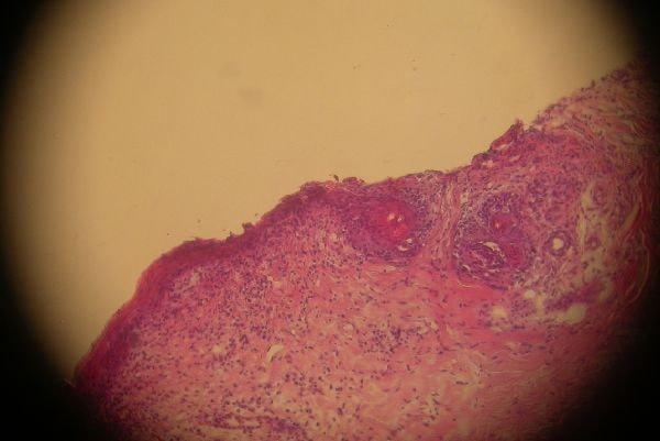 Un cas de mycosis fongoïde chez une chienne