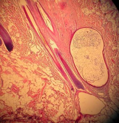 Un cas de naevus organoide chez un Boxer