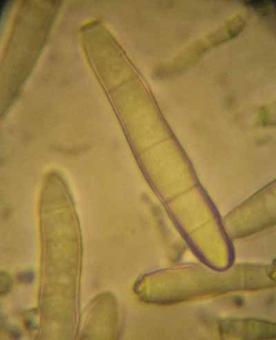 Un cas de dermatomycose de l'encolure